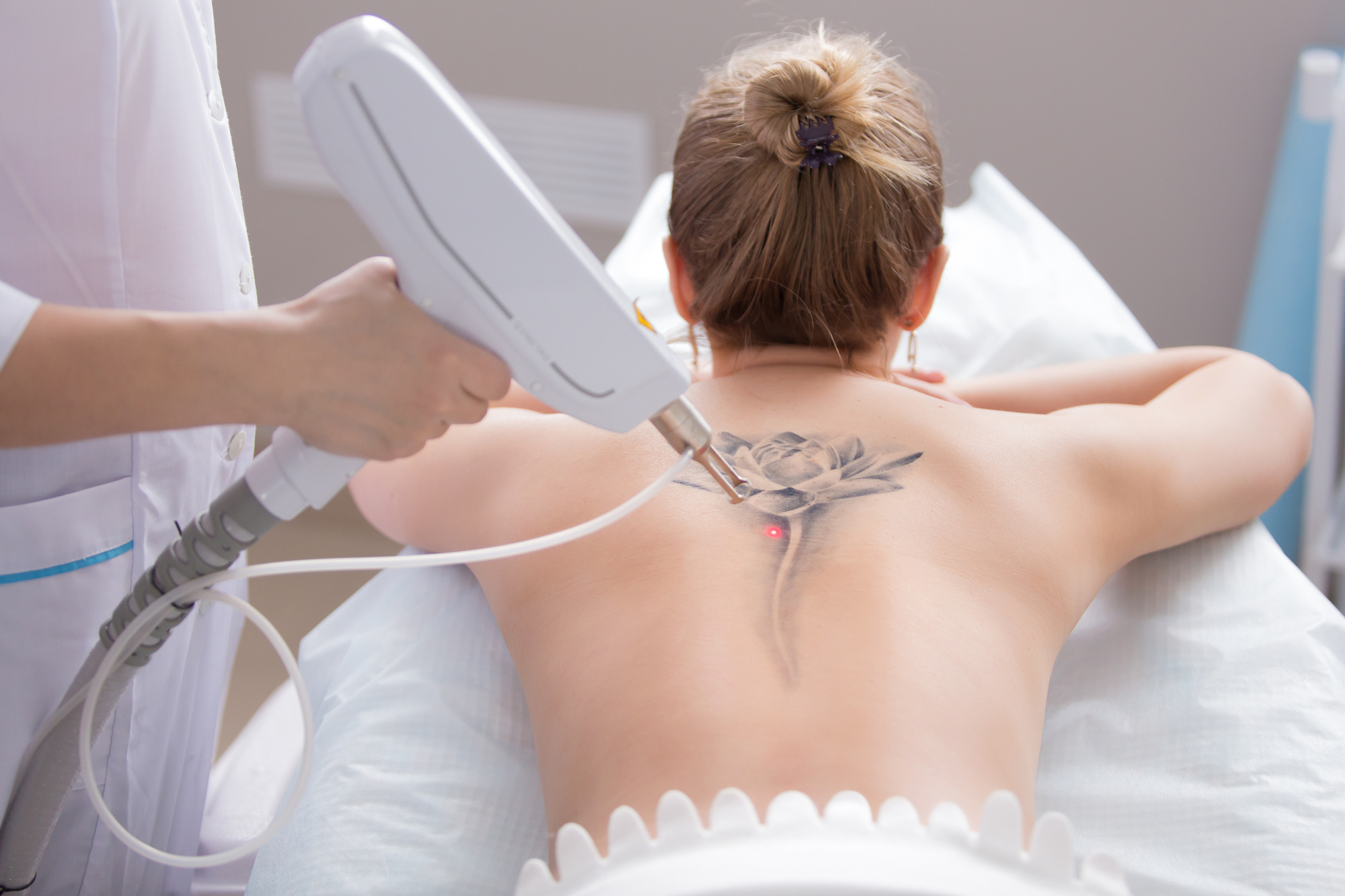How Does Laser Tattoo Removal Work? Your Complete Guide