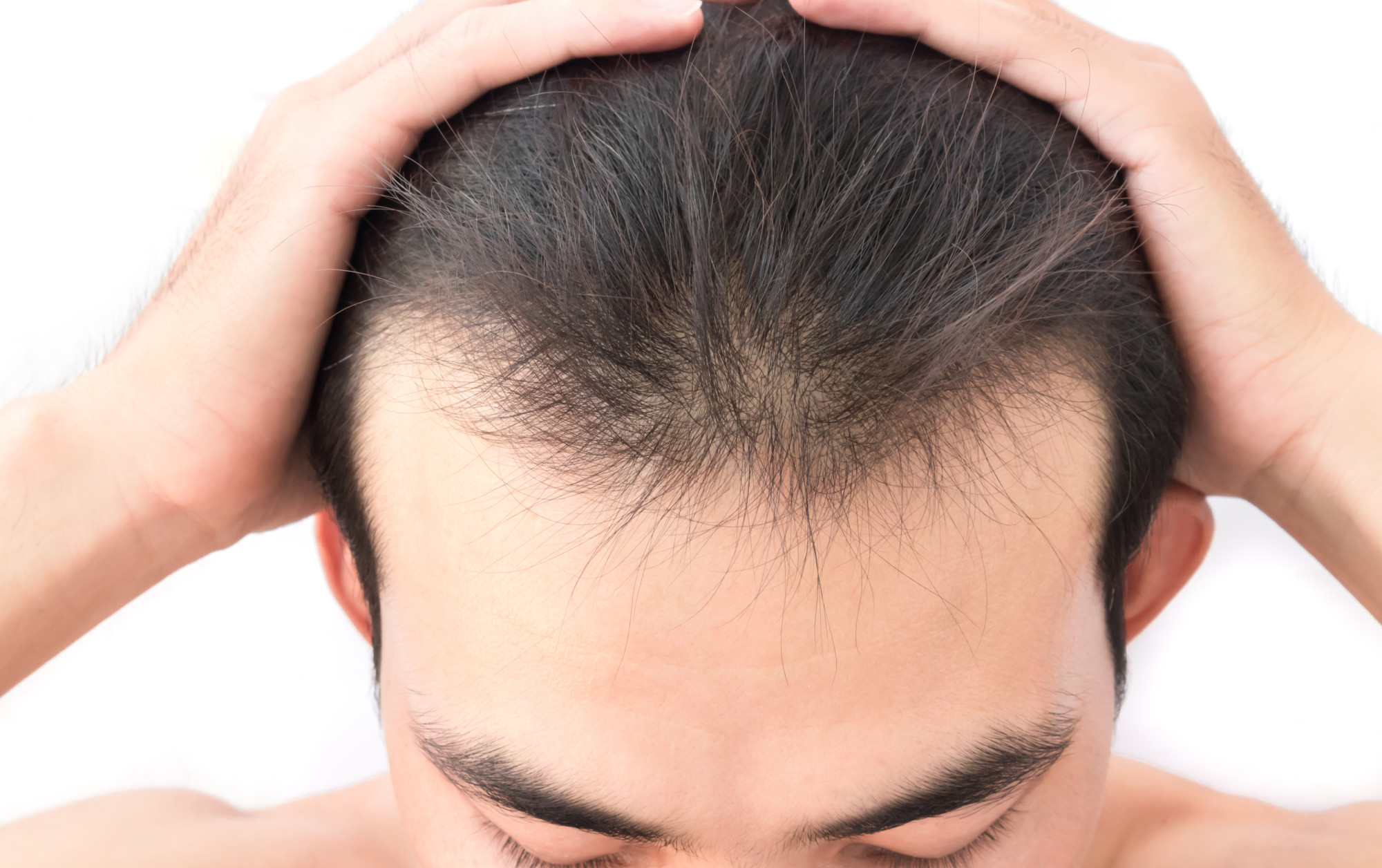 Everything You Should Know About Hair Restoration for Men