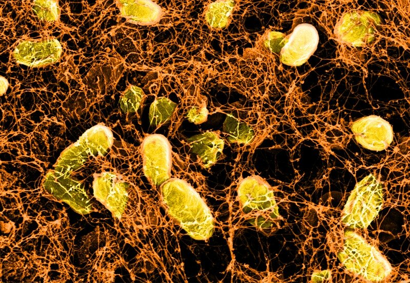 Using the immune system, hydrogels, and bacteria to treat and prevent intestinal diseases