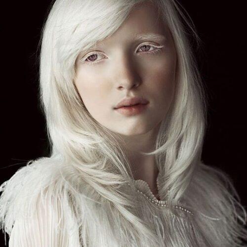albino 10