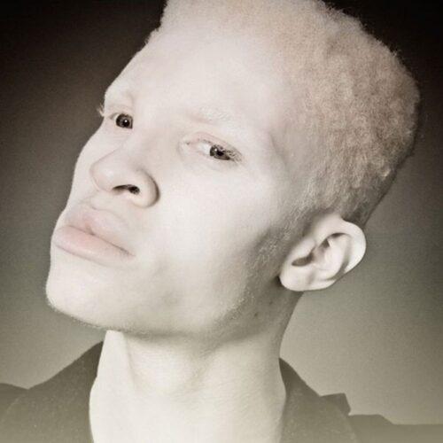 albino 13