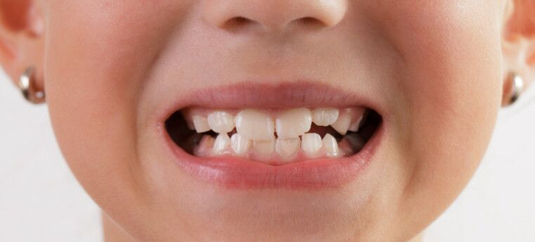 Descobriram funções novas para os dentes de leite