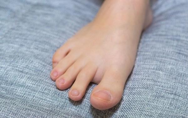 728px-treat-a-torn-toenail-step-1