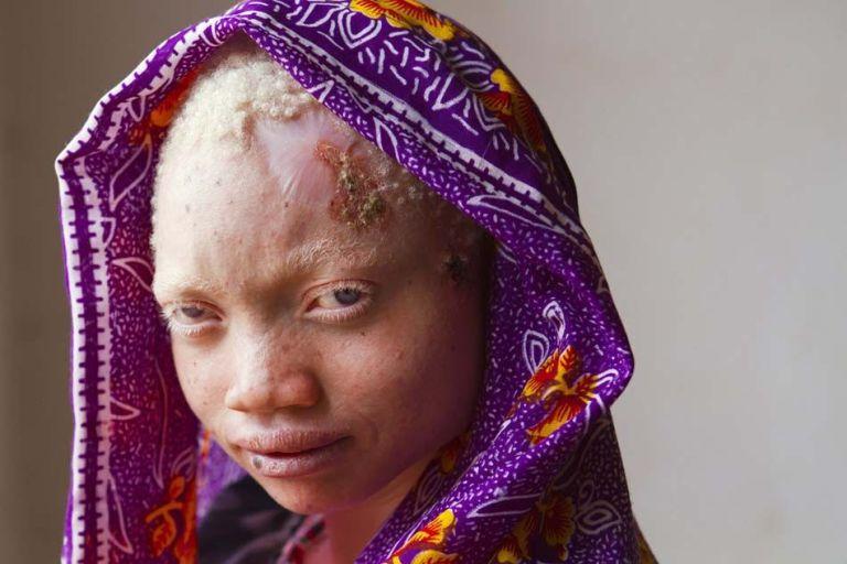 Fotógrafa registrou a vida de africanos albinos que vivem isolados por medo de feitiçaria