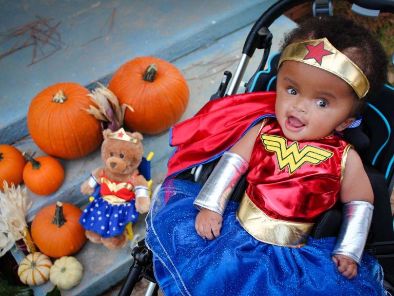 Essa bebezinha com hidrocefalia foi encontrada no lixo, hoje, 3 anos depois ela está se recuperando e passa bem