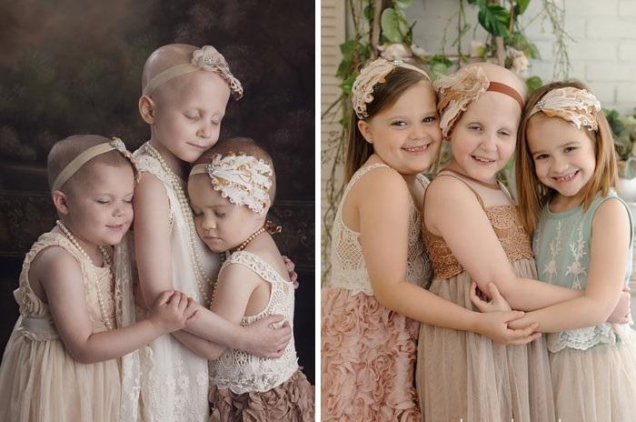 20 antes e depois de sobreviventes do câncer que vão te mostrar que toda vida vale a pena