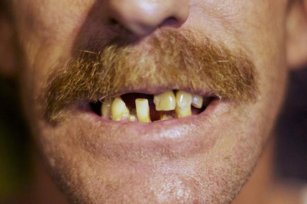 Bad Teeth 600x400, Fatos Desconhecidos