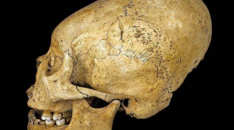 Mistério por trás dos crânios alongados é desvendado por cientistas