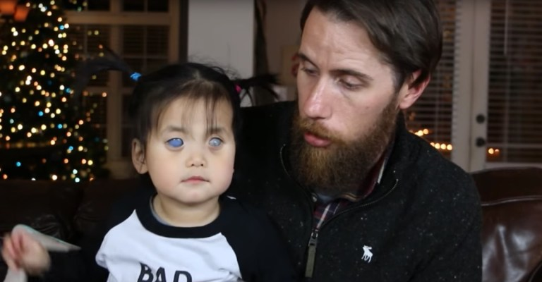 Menina nasceu com olhos prateados e foi abandonada por sua mãe. Uma foto mudou sua vida