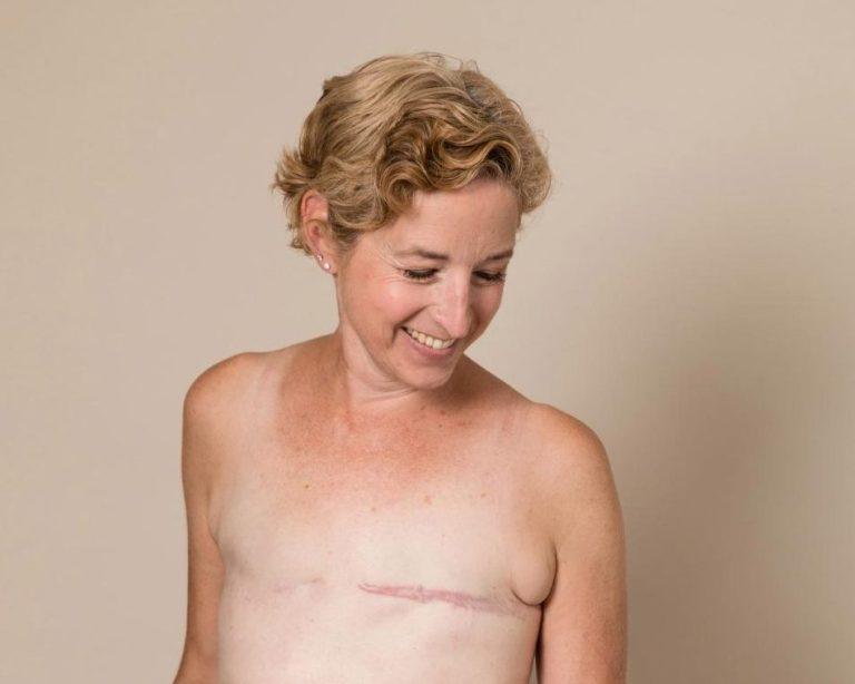 Mulher tira foto sem camisa mostrando com orgulho que venceu 3 cânceres
