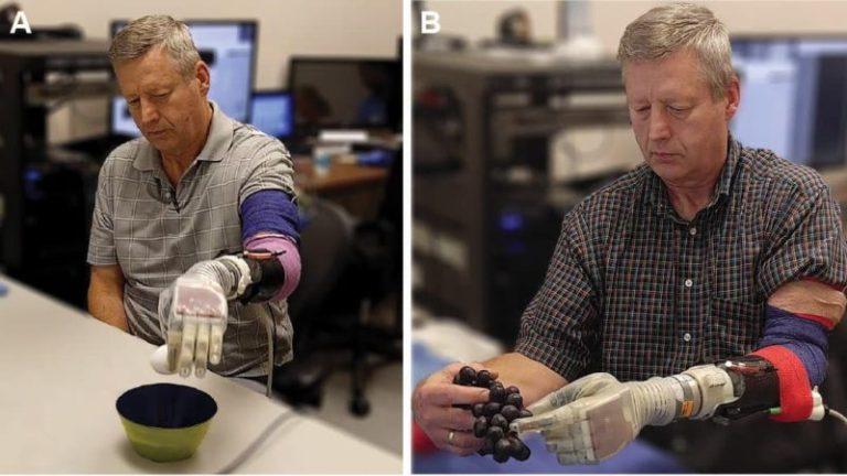Cientistas criam braço em que o usuário pode sentir o toque dos objetos