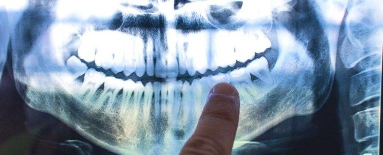 Linhas dos nossos dentes podem indicar eventos da vida como o parto