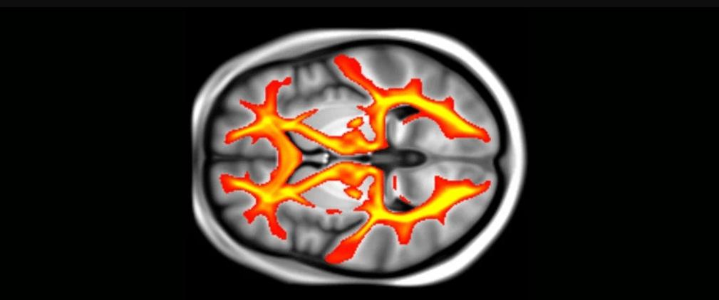 Estrutura do cérebro pode ser alterada por pressão alta e diabetes