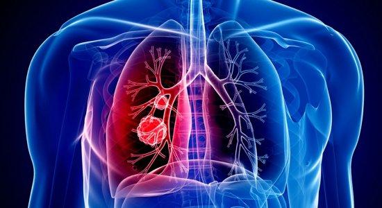 Imagens impressionantes mostram como como o SARS-CoV-2 infecta as células pulmonares