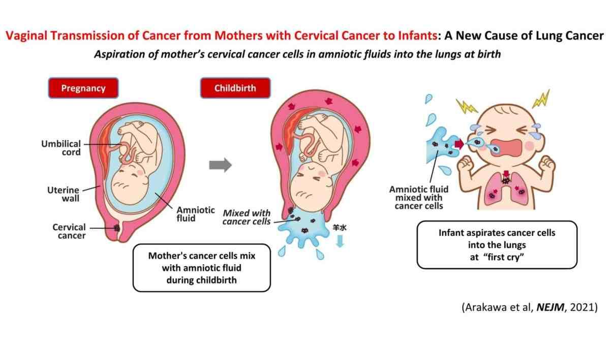 Cancer1 Scaled, Fatos Desconhecidos