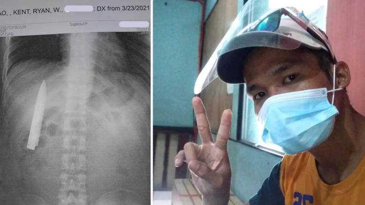 Após sentir dores no peito, filipino descobre lâmina de faca alojada próxima ao pulmão