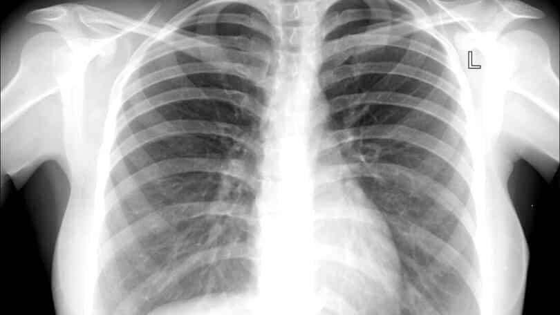 Mulher com suspeita de tuberculose estava com camisinha no pulmão