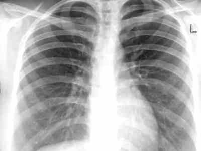 Tuberculose 3, Fatos Desconhecidos