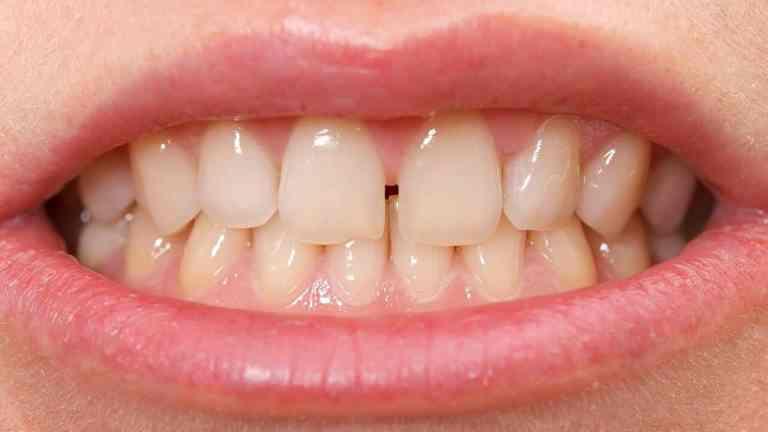 Por que alguns dentes separam mesmo depois de usar aparelho?