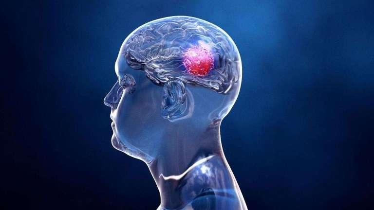 Um tumor cerebral mortal foi impresso em 3D pela primeira vez em laboratório
