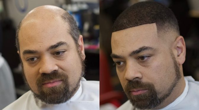 What is a Man Weave? | The Hair Replacement unit
