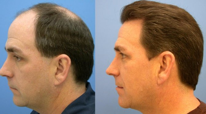 How much Hair Transplant Costs, USA