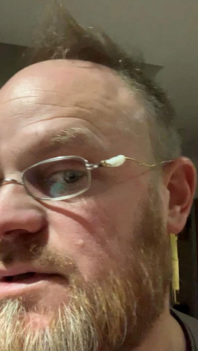 Jon Dawes' repaired glasses