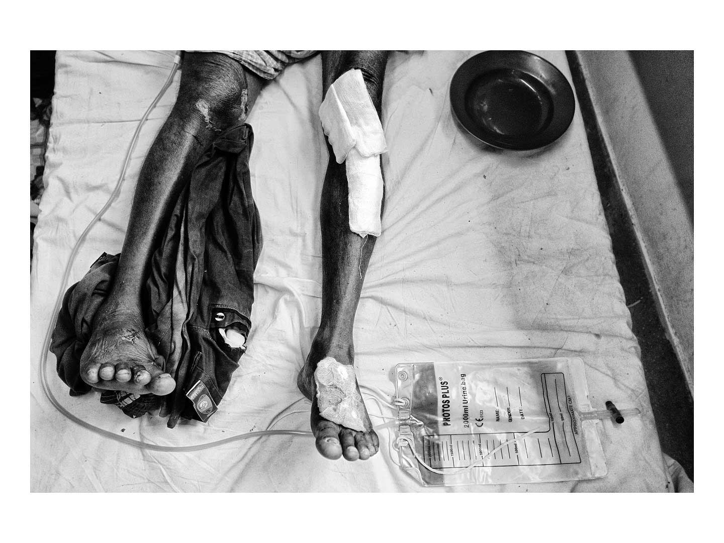 Sixty-year-old Hussein lay in a bed at the Cox's Bazar Sadar Hospital. Shrapnel from helicopters attacking his village damaged both legs. Photo by Greg Constantine.