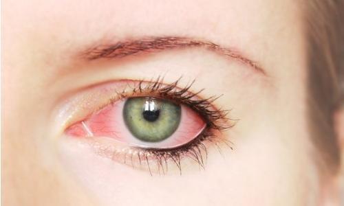 Изображение 1: Покраснение глаз - клиника Семейный доктор