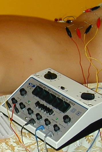 Electroacupuncture - can be heaven and can be hell
