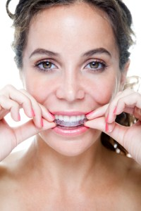 Learn more about aligning your teeth with Invisalign from your cosmetic dentist in Creve Coeur.