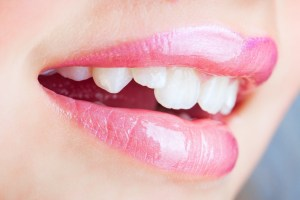 crooked teeth, in need of care from dentist in Creve Coeur