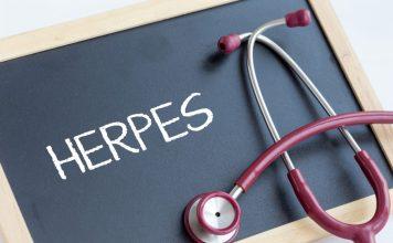 Herpes labial – uma epidemia silenciosa