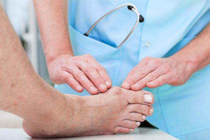 Joanete – Entenda sobre esse problema dos pés