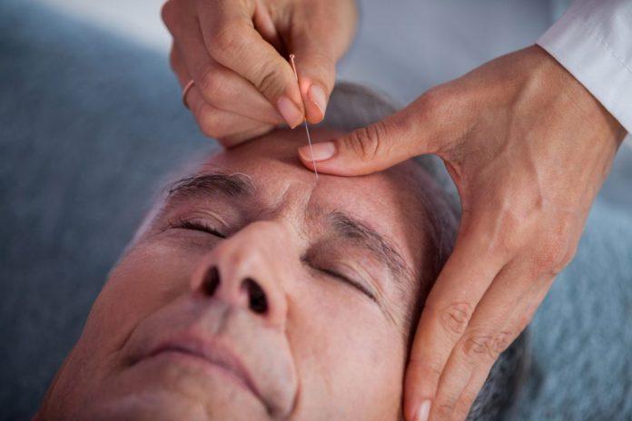 Acupuntura para tratar dor de cabeça