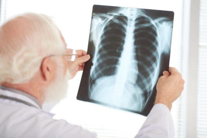 Tuberculose: Risco maior na terceira idade