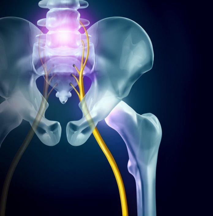 Dor no nervo ciático – 5 remédios caseiros