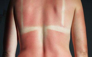 Queimaduras de Sol – 4 tratamentos Naturais