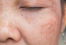 Problemas de pele mais comuns no verão