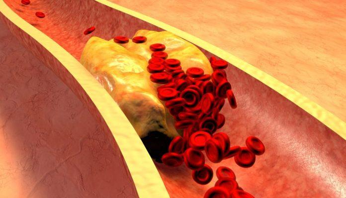 10 possíveis sintomas de colesterol alto