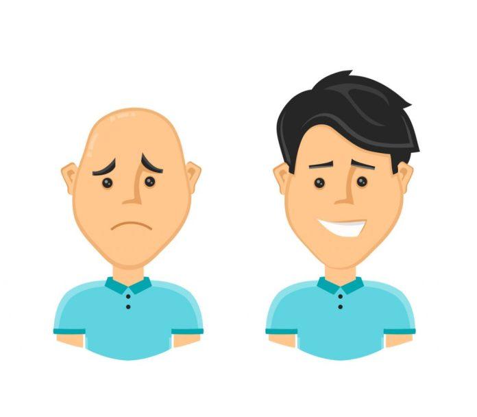 Implante capilar – Conheça os métodos, com seus prós e contras