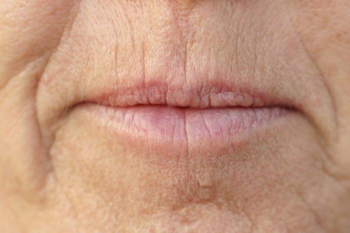 5 remédios naturais para hidratar os lábios