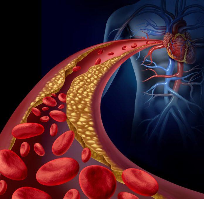 10 alimentos que ajudam a desentupir as artérias