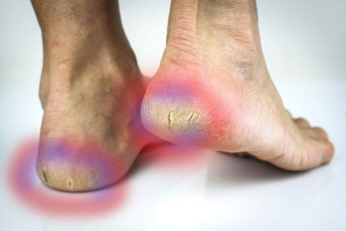 Rachaduras nos pés – Remédios caseiros