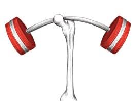 Artrite – Alimentos que diminuem a dor