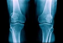 Cuidados importantes para os joelhos na Terceira Idade