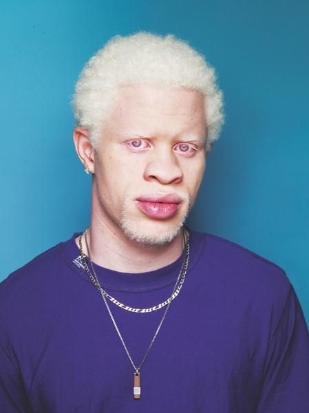 Risultati immagini per immagini albini