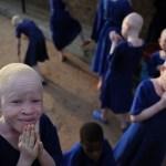 Pecore bianche: le storie degli albini africani