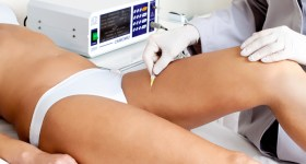 Carbossiterapia: come eliminare la cellulite, funziona?
