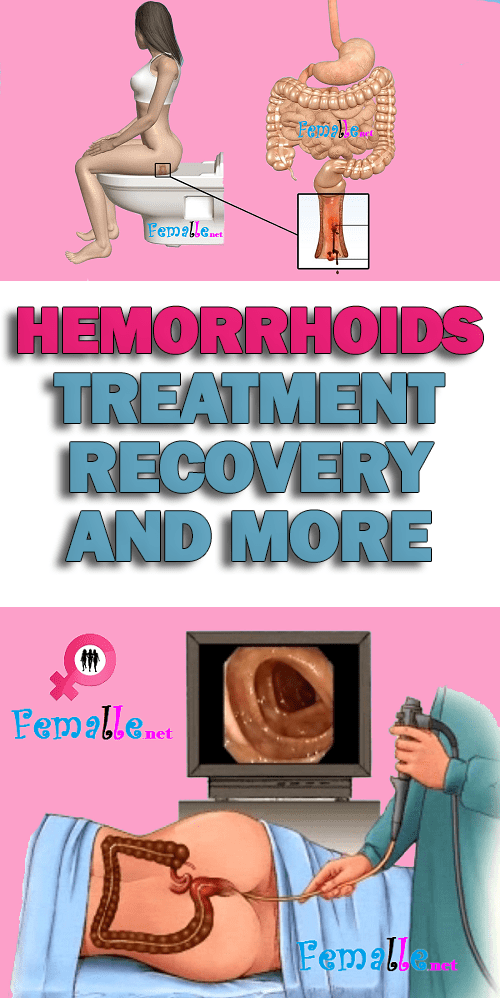 Hemorrhoids – Treatment, Recovery, and More